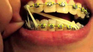 Muscatura corecta aparat dentar